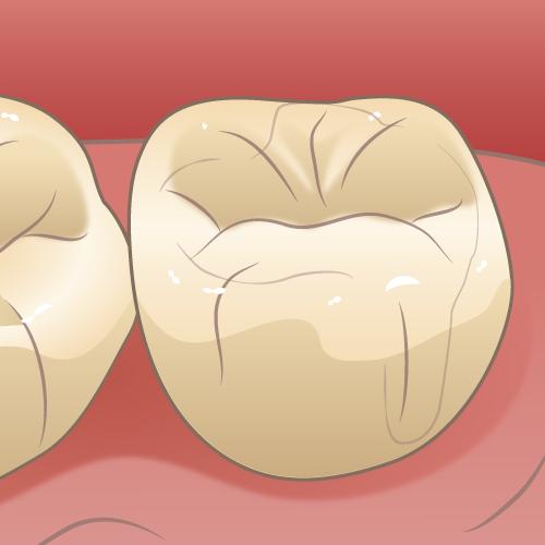 大阪府 大阪市 北区 ホワイトエッセンス梅田新道矯正歯科 天然の歯のような美しさと質感を再現