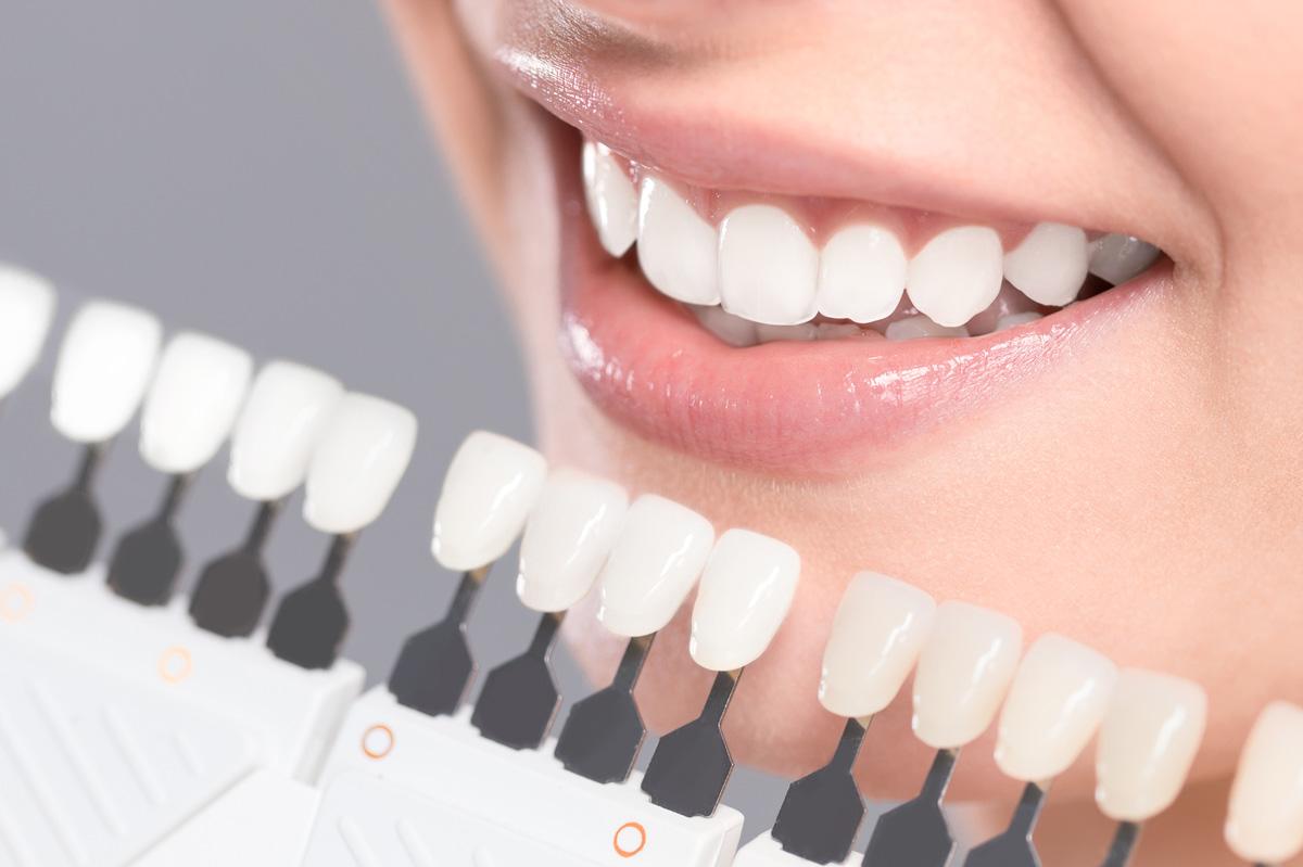 大阪府 大阪市 北区 ホワイトエッセンス梅田新道矯正歯科 歯そのものを白くする、ホワイトニングとは?