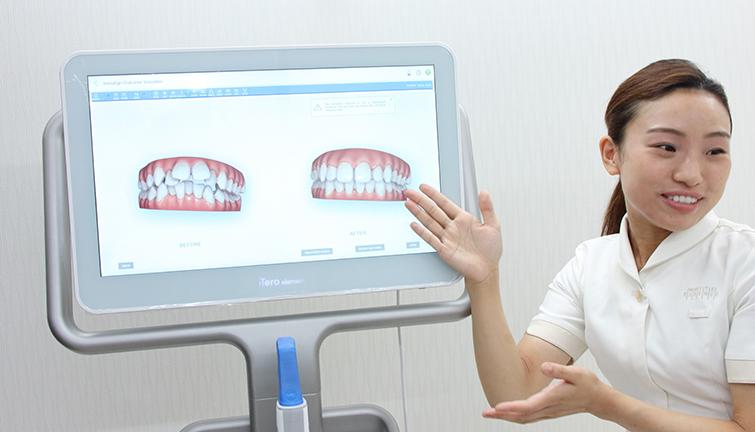ホワイトエッセンス梅田新道矯正歯科 インビザライン専用3Dシミュレーションシステム